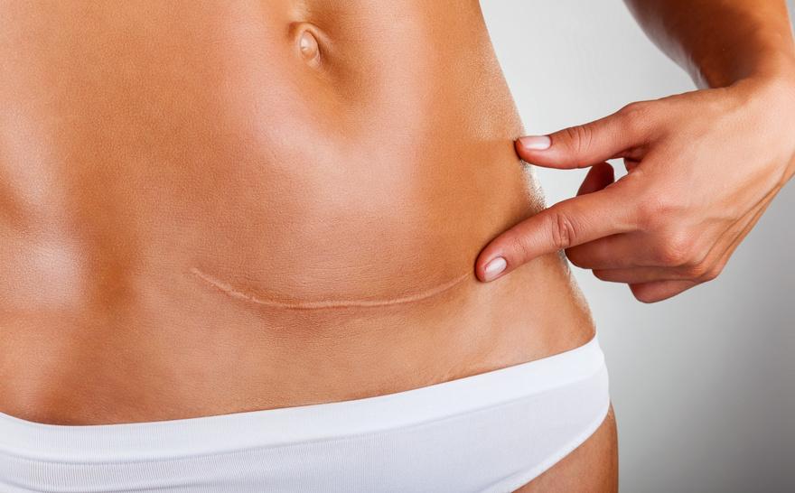 Was Narben mit Schmerzen und Bewegungs- und Leistungsfähigkeit zu tun haben